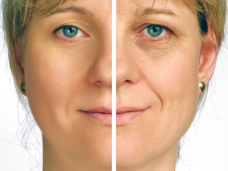 Nguyen Plastic Surgery Face lift